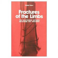 Fractures of the limbs: the relationship between mechanism and treatment, ROBERT SOEUR - Carte Ortopedie
