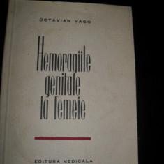 Octavian Vago, Hemoragiile genitale la femeie - Carte Obstretica Ginecologie