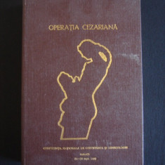 OPERATIA CEZARIANA - CONFERINTA NATIONALA DE OBSTETRICA SI GINECOLOGIE {1982} - Carte Obstretica Ginecologie