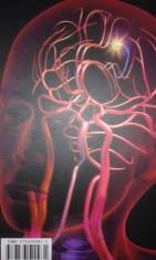 dr A.Chefneux-Rol angiografie cerebrala-diagnostic-tratament malformatii arteriovenoase cerebrale (neurologie-neurochirurgie-imagistica etc)-C1315 foto