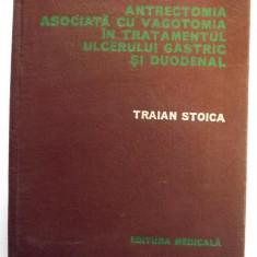 ANTRECTOMIA ASOCIATA CU VAGOTOMIA IN TRATAMENTUL ULCERULUI GASTRIC SI DUODENAL - TRAIAN STOICA
