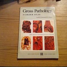 GROSS PATHOLOGY * A Colour Atlas - R.C. Curran, E.L. Jons - 1974, 146 p. - Curs Medicina
