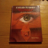 EYELID TUMORS * Clinical Diagnosis and Surgical Treatment - Jay Justin Older