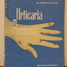 URTICARIA SI ECZEMA -DR.PAVEL VULCAN