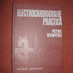 Electrocardiografie practica - Petre Dumitru - Carte Cardiologie