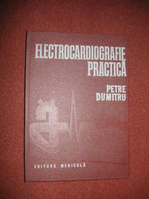 Electrocardiografie practica - Petre Dumitru foto