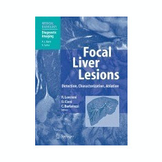 Focal Liver Lesions: Detection, Characterization, Ablation - Carte in engleza