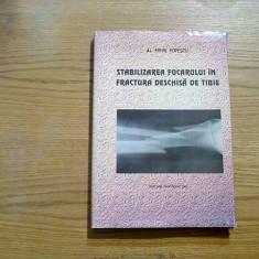 STABILIZAREA FOCARULUI IN FRACTURA DESCHISA DE TIBIE - Mihai Popescu - 1997 - Carte Ortopedie