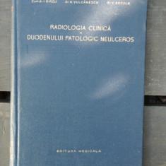RADIOLOGIA CLINICA A DUODENULUI PATOLOGIC NEULCEROS - I. BIRZU - Carte Radiologie