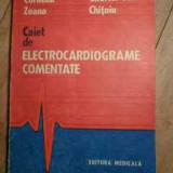 Electrocardiograme Comentate - Corneliu Zeana Gabriel Tatu Chitoiu, 530409