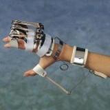 Orteza incheietura mainii mana deget fixa
