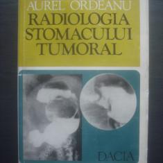 AUREL ORDEANU - RADIOLOGIA STOMACULUI TUMORAL - Carte Radiologie