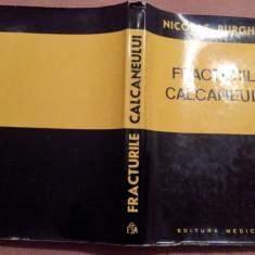 Fracturile Calcaneului - Nicolae Burghele - Carte Ortopedie