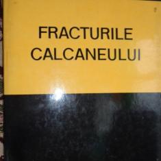 Fracturile calcaneului an 1978207pag/107figuri- Nicolae Burghele - Carte Ortopedie
