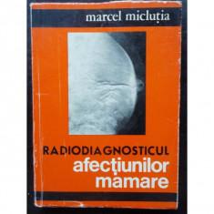 DIAGNOSTICUL AFECTIUNILOR MAMARE - MARCEL MICLUTIA - Carte Radiologie