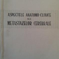MIRCEA D. SIMIONESCU: ASPECTELE ANATOMO-CLINICE ALE METASTAZELOR CEREBRALE - Carte Oncologie