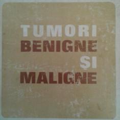 (sub redactia) GEORGETA TARABUTA CORDUN: TUMORI BENIGNE SI MALIGNE, 2 vol. - Carte Oncologie