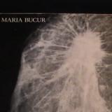 ATLAS DE MANOGRAFIE-MARIA BUCUR-IN ENGLEZA SI ROMANA-207 PG A 3-