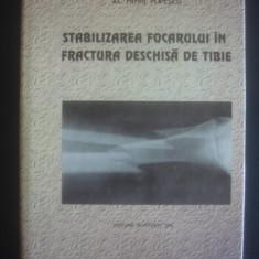 MIHAI POPESCU - STABILIZAREA FOCARULUI IN FRACTURA DESCHISA DE TIBIE - Carte Ortopedie