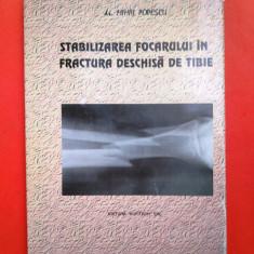 STABILIZAREA FOCARULUI IN FRACTURA DESCHISA DE TIBIE Mihai Popescu - Carte Ortopedie