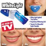 Aparat albire dinti White Light Practic HomeWork