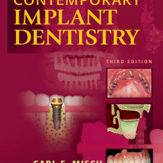 Contemporary Implant Dentistry - Editia 3 - Carl. E. Misch Engleza