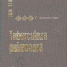 Cum tratam TUBERCULOZA PULMONARA de C.Anastasatu 1968, Carte medicina, T.GRATUIT