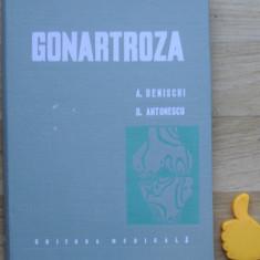 Gonartroza A Denischi A Antonescu - Carte Ortopedie