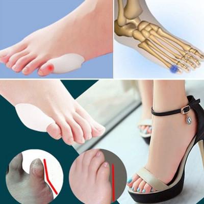 Batatura deget mic picior | Forumul Medical ROmedic