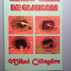 Tratat clinic de glaucom - Mihai Calugaru - Carte Oftalmologie