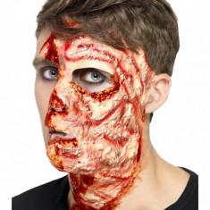 Cicatrice fata arsa autoadeziva
