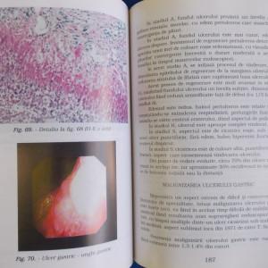 CONSTANTIN CHIRA - GASTROENTEROLOGIE CLINICA SI ENDOSCOPICA - 1998