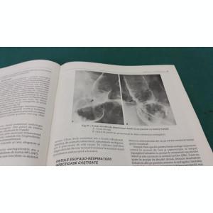 TRATAT DE HEPATOGASTROENTEROLOGIE/ L. BULIGESCU/VOL. I/1997