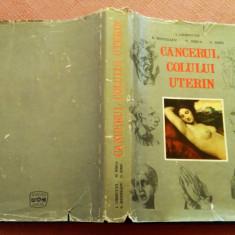 Cancerul Colului Uterin - I. Chiricuta, S. Munteanu, M. Risca, G. Simu, Alta editura, 1972