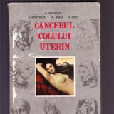 CANCERUL COLULUI UTERIN