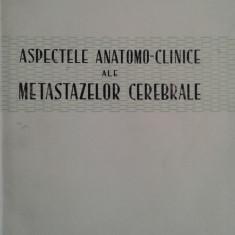 MIRCEA D. SIMIONESCU: ASPECTELE ANATOMO-CLINICE ALE METASTAZELOR CEREBRALE
