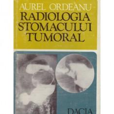 Radiologia stomacului tumoral