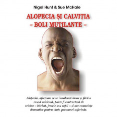 Alopecia si calvitia - boli mutilante - Nigel Hunt Sue McHale