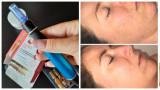 Tratament Lifting Facial /Microace/ Mezoterapie