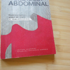 C. CALOGHERA--CHIRURGIA PERETELUI ABDOMINAL - 1987