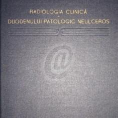 Radiologia clinica a duodenului patologic neulceros