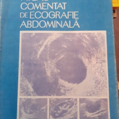 Atlas comentat de ecografie abdominala – Badea