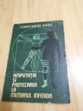 CONSTANTIN RADU--AMPUTATIA SI PROTEZAREA MEMBRULUI INFERIOR