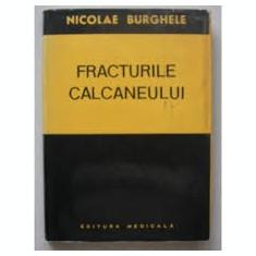 Nicolae burghele fracturile calcaneului