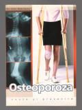 C9725 OSTEOPOROZA. CAUZE SI PREVENIRE - Dr. EMIL RADULESCU