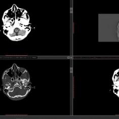 PACS - Sistem de Arhivare Imagistica Medicala
