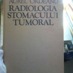 Radiologia stomacului tumoral – Aurel Ordeanu