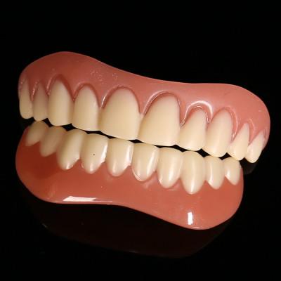 Fatete dentare Instant Smile solutia ideala pentru un zambet perfect proteza foto