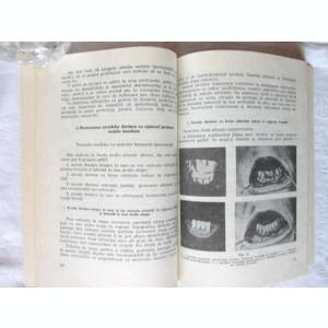 RESTAURAREA PROTETICA IMEDIATA A ARCADELOR DENTARE, Ion Rindasu, 1972