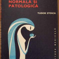 Pubertatea Normala Si Patologica - Tudor Stoica ,289814